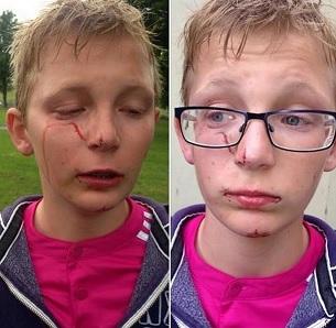 11-letni Polak został w Belfaście otoczony przez grupę rówieśników i pobity